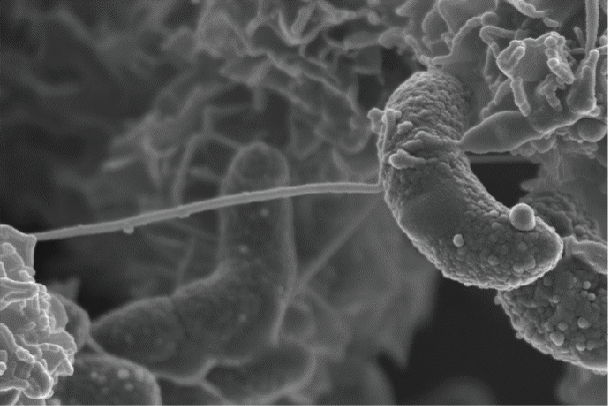 microbe through a telescopic lens